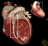 Heart bypass surgery. Multy-planar CT. Heart bypass surgery. CT-scan digital highly detailed multy-planar reconstruction is isolated on black Royalty Free Stock Image