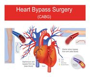 Heart bypass surgery. Stock Photography
