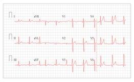 Heart Cardiogram Chart Vector. Healthy, Heart Electrocardiogram, Pulse. Heart Cardiogram Chart Vector. Set Healthy Heart Rhythm, Ischemia, Infarction. Vitality Royalty Free Stock Photography