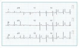 Heart Cardiogram Chart Vector. Illustration Of Wave Form On Checked Ecg Graph. Heart Rhythm, Ischemia, Infarction. Vitality Heartb. Heart Cardiogram Chart Vector Royalty Free Stock Photo