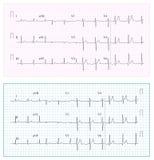 Heart Cardiogram Chart Vector. Set Healthy Heart Rhythm, Ischemia, Infarction. Vitality Heartbeat. Heart Electrocardiogram, Pulse Stock Photo