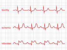 Heart cardiogram vector charts set. Healthy heart Royalty Free Stock Image