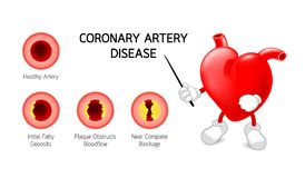Heart character with Coronary Artery Disease info graphic. Royalty Free Stock Photo