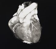 Heart Computed Tomography Stock Photos