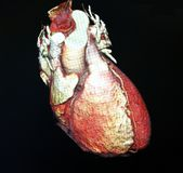 Heart Computed Tomography. Computed Body Tomography of Heart MPR color royalty free stock images