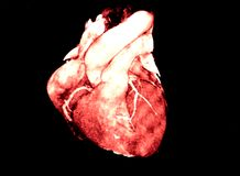 Heart Computed Tomography, CT, radiology Royalty Free Stock Image