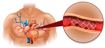 Heart disease diagram in human Stock Image