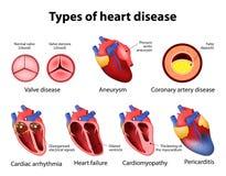 Heart disease vector illustration