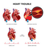 Heart disease vector infographics Stock Photo