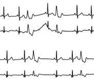 Heart diseases graphs Stock Image