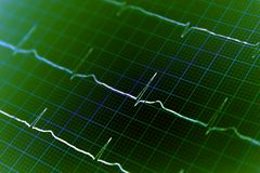 Heart ECG graph on paper Stock Images