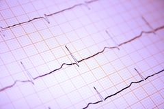 Heart ECG graph on paper Royalty Free Stock Photo