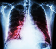 Heart failure  ( film x-ray chest PA upright : show cardiomegaly and interstitial infiltrate both lung ) Stock Photo