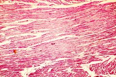Heart hypertrophy photomicrograph. Heart hypertrophy. Photomicrograph showing hypertrophic myocardium with thick muscle fibers and enlarged and dark nuclei stock photos