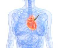 Heart injection Stock Photo