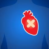 Heart injury. Stock Photos