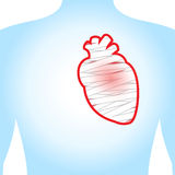 Heart injury. The heart injury. On a blue background. Illustration Stock Photos