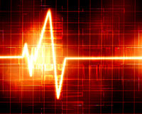Heart monitor Royalty Free Stock Photo