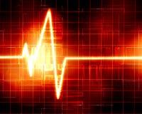 Heart monitor Royalty Free Stock Photo