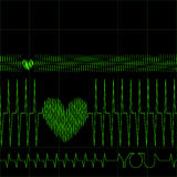 Heart Monitor Stock Photos