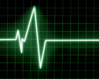 Heart monitor Stock Image