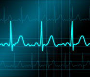 Heart monitor Stock Images
