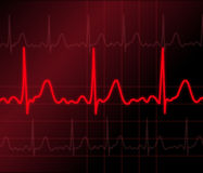 Heart monitor. Illustration of electrical activity of the human heart Royalty Free Stock Photo
