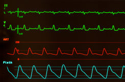Heart Monitor with Intraventricular Conduction Delay on EKG. Close up of a monitor with black screen showing a heart rhythm with Intraventricular Conduction Royalty Free Stock Photography