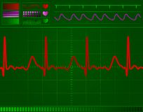 Heart monitor screen Stock Photos