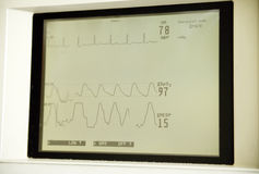 Heart monitor screen Royalty Free Stock Photo