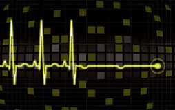 Heart monitor screen Stock Photography