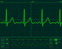 Heart monitor screen Royalty Free Stock Images