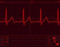 Heart monitor screen Stock Photography