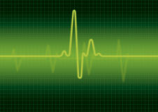 Heart monitor screen. With normal beat signal Stock Images
