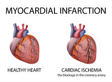 Heart. Myocardial infarction. Stock Photography