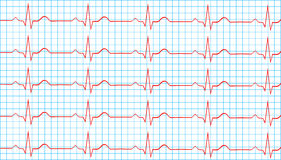 Heart Normal Sinus Rhythm On Electrocardiogram Stock Photos