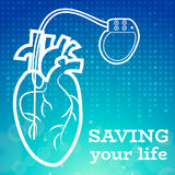 Heart pacemaker body Royalty Free Stock Photo