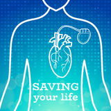 Heart pacemaker body Stock Photography