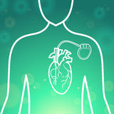 Heart pacemaker body Royalty Free Stock Photography