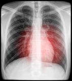 Heart pain on x-ray Stock Photo