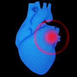 Heart with pathologies  localized Stock Photos