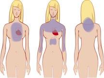 Heart problem Stock Image