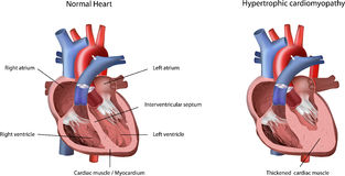 Heart Problem Hypertrophic Cardiomyopathy. Vector Illustration. The heart problem caused by thickened cardiac muscle /  myocardium in left ventricle Royalty Free Stock Photo