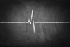 Heart Pulse. On chalkboard textured background Stock Images