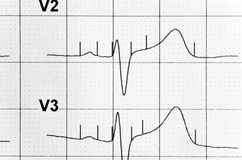 Heart rate. Schedule of heart rate drawn by the modern medical device royalty free stock photography