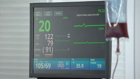 Heart rate falling to zero on ecg monitor in reanimation room, blood transfusion