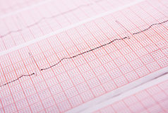 Heart rate on medical print out. Closeup of a heart rate monitor printout royalty free stock images