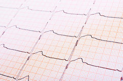Heart rhythm chart Stock Image