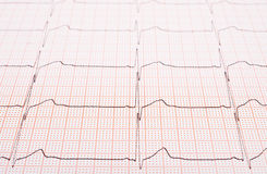 Heart rhythm chart Stock Photos