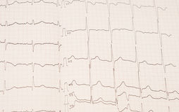 Heart rhythm chart Stock Photos